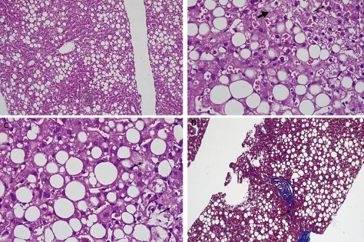 Liver histopathology revealing features suggestive of severe mixed macro and micro-vescicular-steatosis