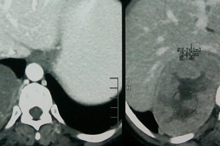 Showing the heterogenous mass in the right adrenal area