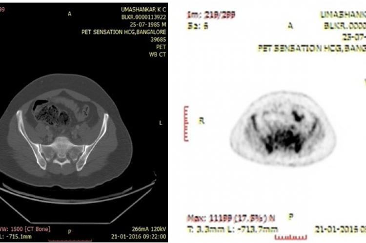 Pretreatment FDG- PET/CT imaging suggestive of vertebral lesion